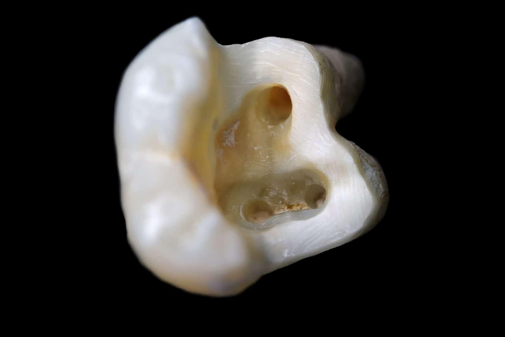 Christchurch Dentist. Root Canals
