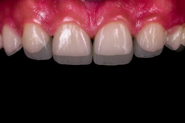 composite ceramic veneers christchurch dentist