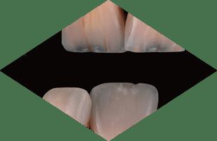Tooth Characteristics Crack Lines