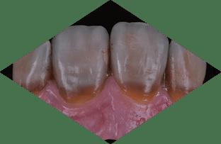 Tooth Characteristics Gradient