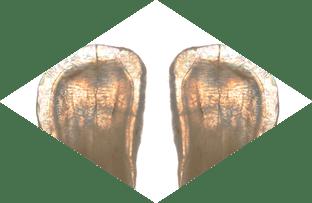 Tooth Characteristics Translucency
