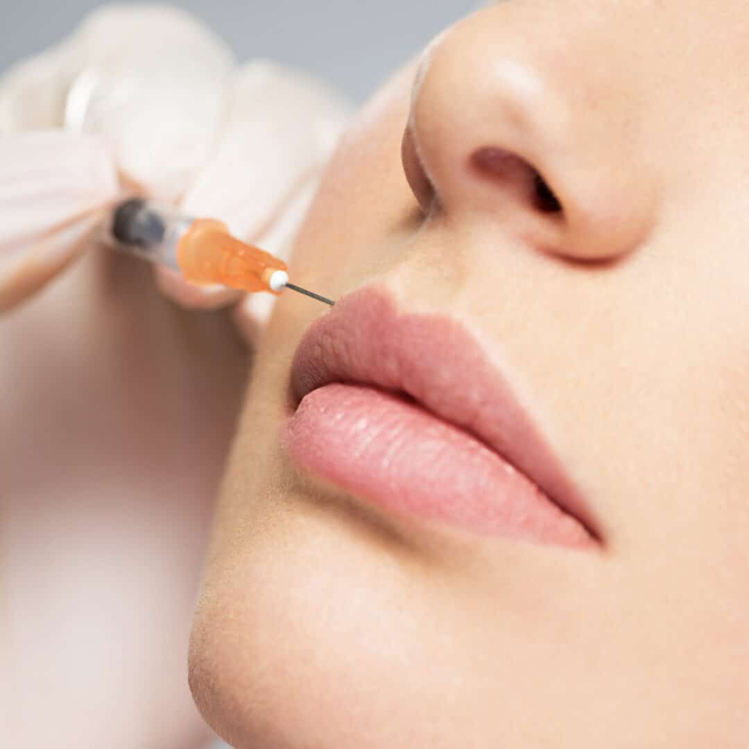 botox-dysport-christchurch-cosmetic-dentist-riccarton